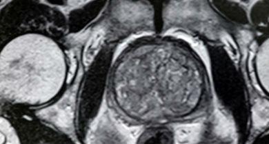 Tomografia de uma Hiperplasia na próstata